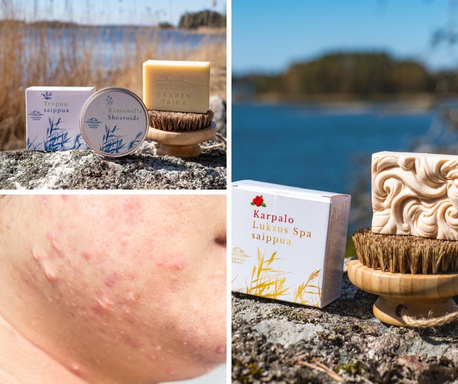 Ihana rentouttava päiväkävely Hangossa sekä pohdintaa ongelmaisen ihon hoidosta Saaren Taika tuotteilla.