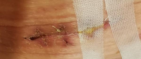 Hidasta hidasta toipumista leikkauksesta ja Madeiran lomamatka vaarassa